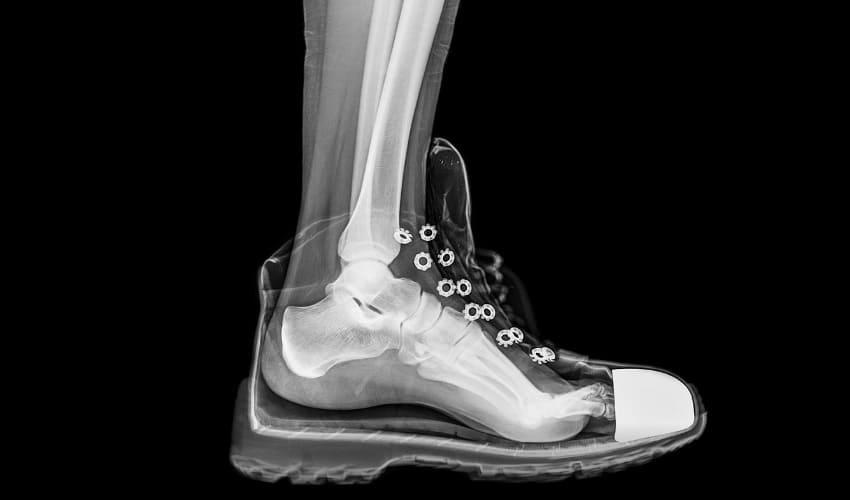как делают рентгеновские снимки костей, рентгеновские снимки, рентгеновские снимки костей, как делают рентгеновские снимки