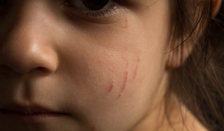 почему рана покрывается коркой, как заживает рана