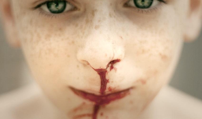 почему из носа течет кровь, почему из носа иногда течет кровь, причины кровотечения из носа, кровотечение из носа